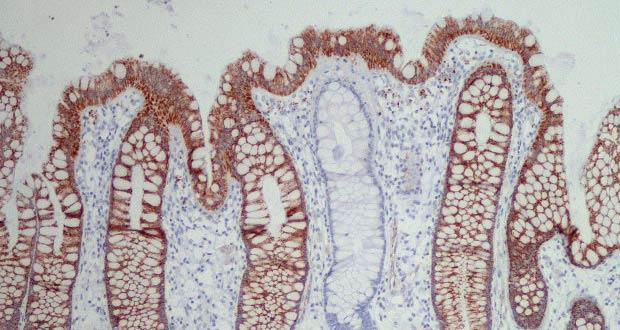 Premier combo de traitement du cancer de l'intestin «ciblé» approuvé pour une utilisation par le NHS en Angleterre