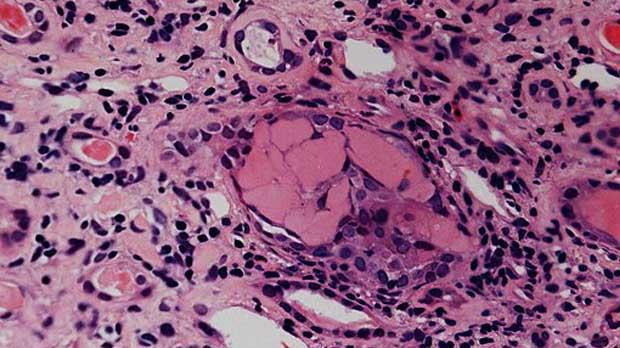 Traitement d'entretien du myélome non recommandé sur le NHS en Angleterre
