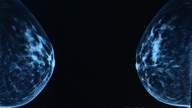 Erreur de dépistage mammaire : les femmes ont besoin d'être rassurées, pas de statistiques trompeuses